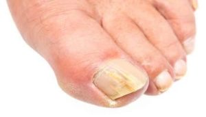 Natural Cures For Toenail Fungus