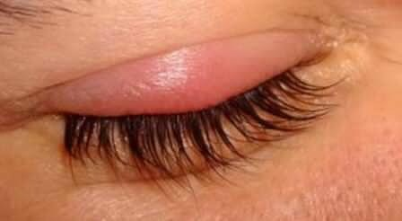 how to get rid of a stye fast and easy