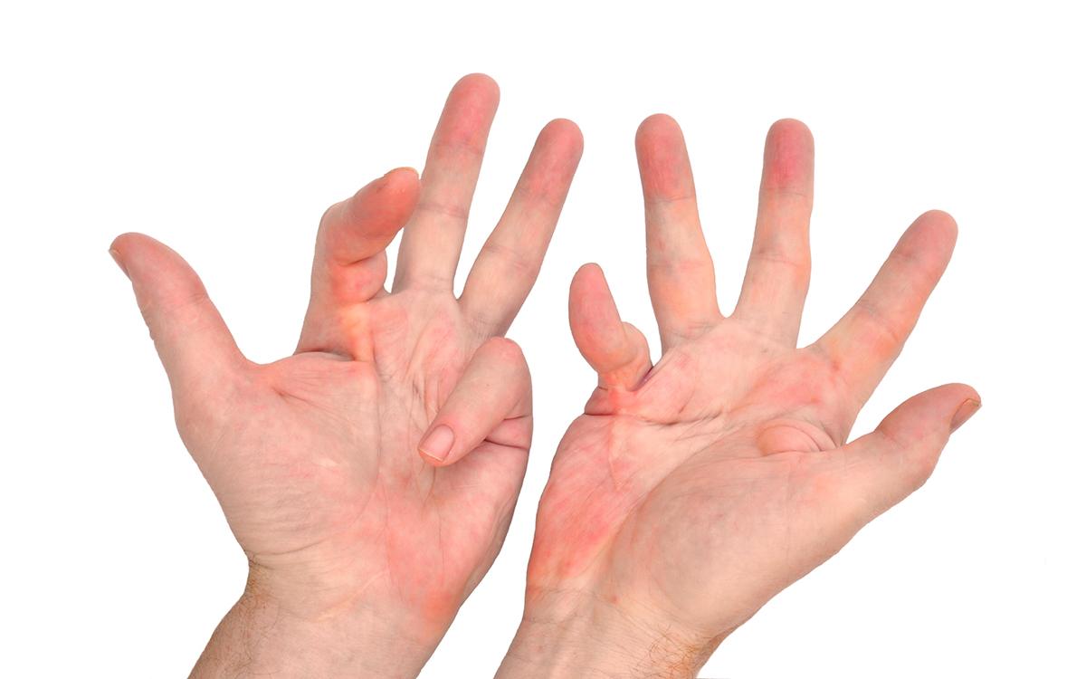 Контрактура пальцев рук лечение фото