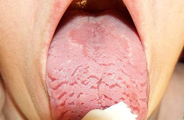 geographic tongue causes symptoms and home remedies. Black Bedroom Furniture Sets. Home Design Ideas