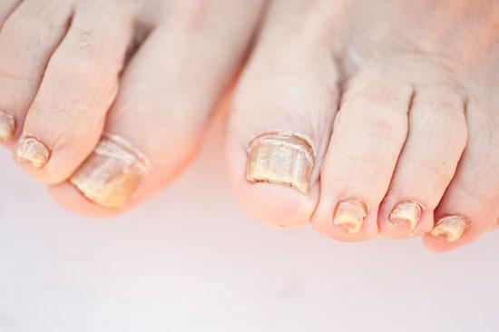 Как лечить грибок ногтей ничего не помогает