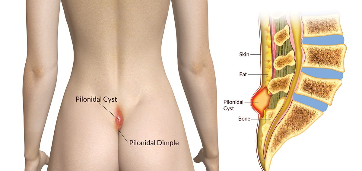 Pilonidal Cyst  Causes  Treatments And Other Essentials