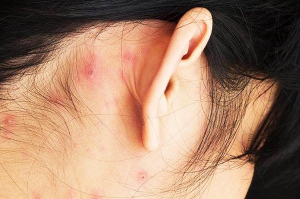 Home Remedies For A Pimple Behind The Ear Healthdigezt Com