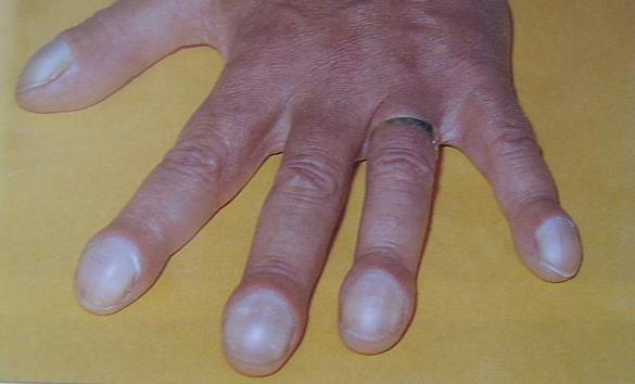 what is clubbing of nails