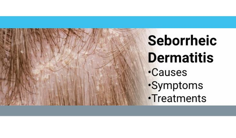 seborrheic dermatitis topical steroids