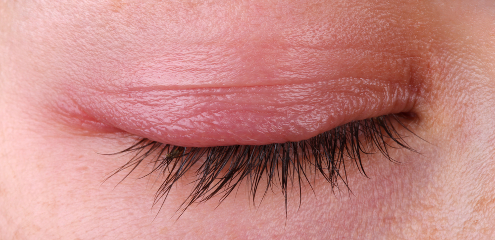 What You Need To Know About Blepharitis Healthdigezt Com